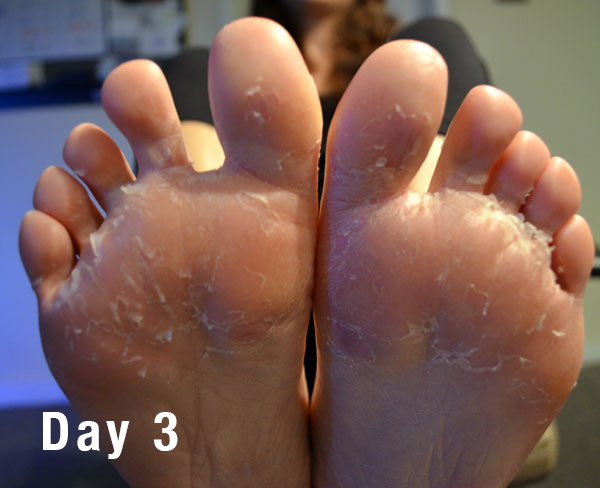 how to get rid of peeling skin on feet fast
