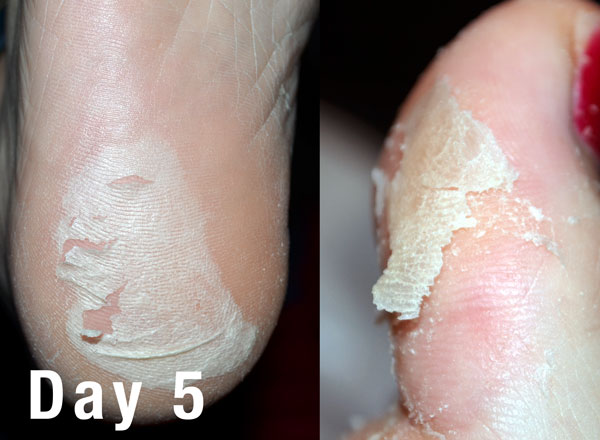 how to get rid of peeling skin on fingers