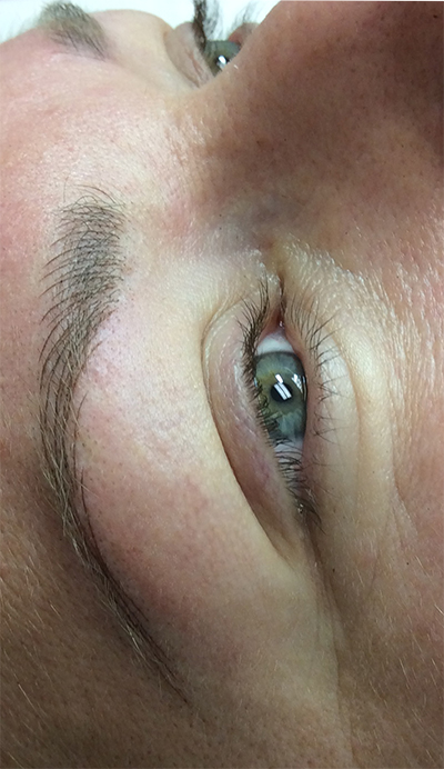 After First Treatment Permanent Eyebrow