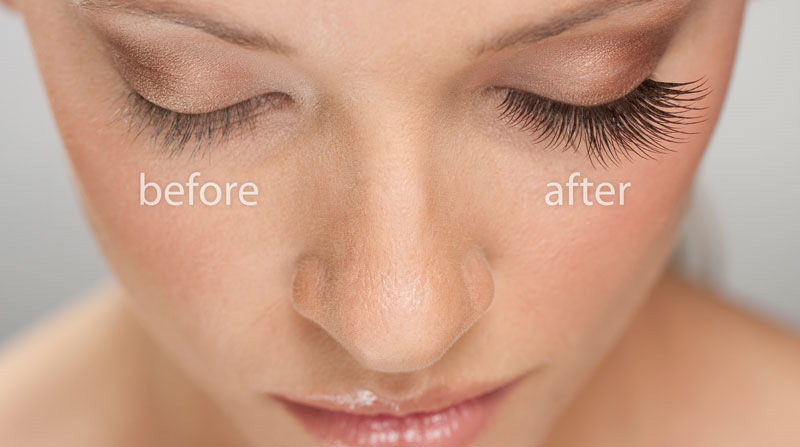 Wilmington Laser Hair Removal & Skin Clinic Eyelash Extensions ...