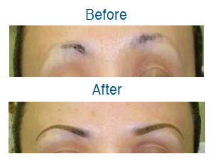 Wilmington Laser Hair Removal Skin Clinic