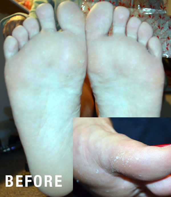 before-baby-foot